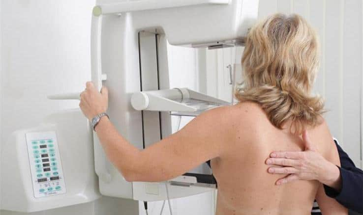 How to Manage Your Risk for Breast Cancer