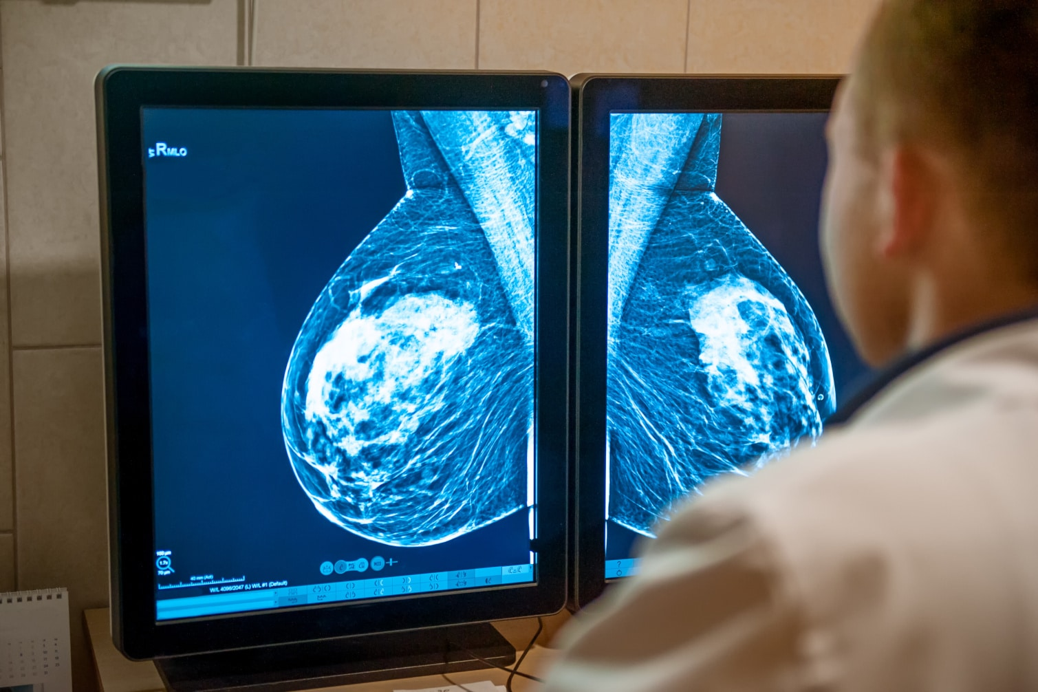 4 Ways to Reduce Your Breast Cancer Risk